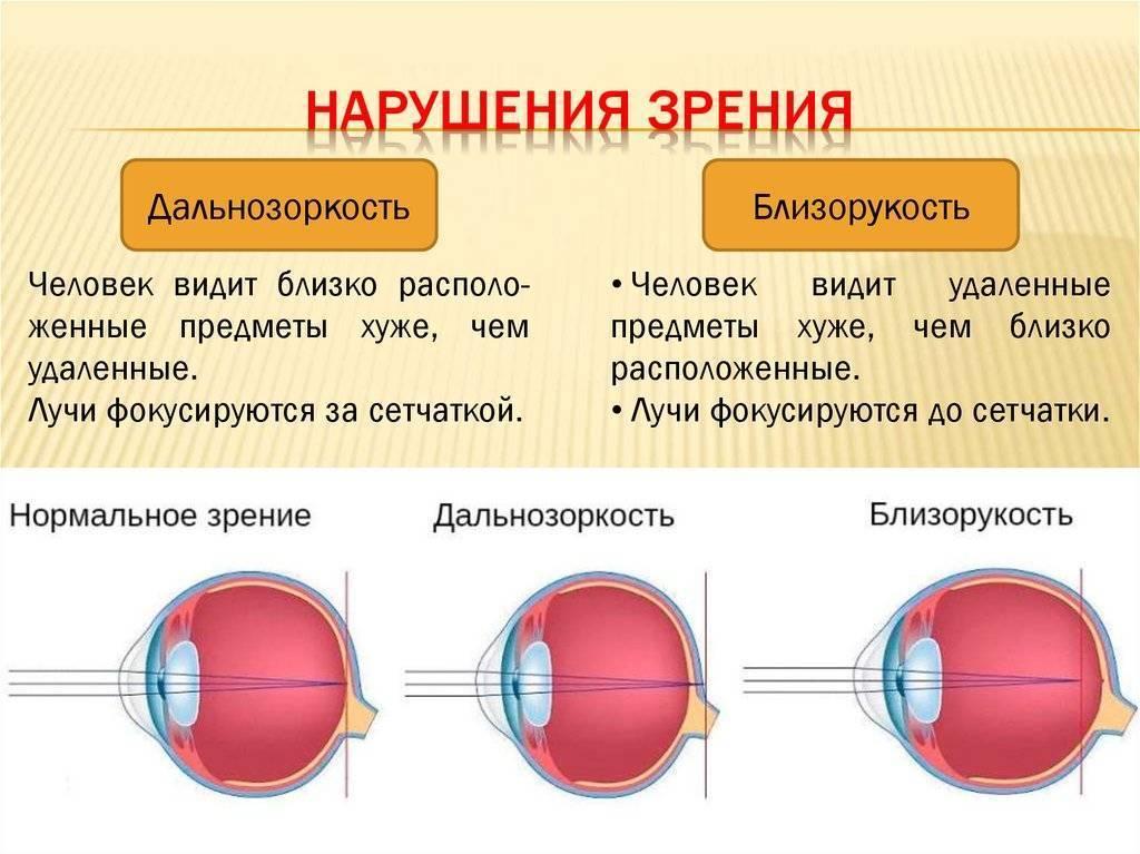 Миопия выше 3-6 диоптрий: диагностика, коррекция