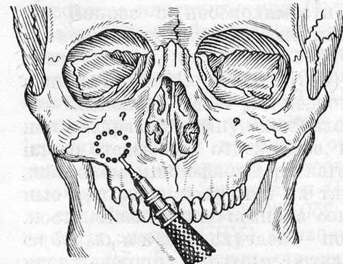 Одонтогенный синусит: лечение, причины и симптомы