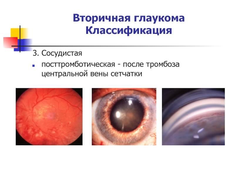 О чем говорит диагноз «вторичная глаукома»?