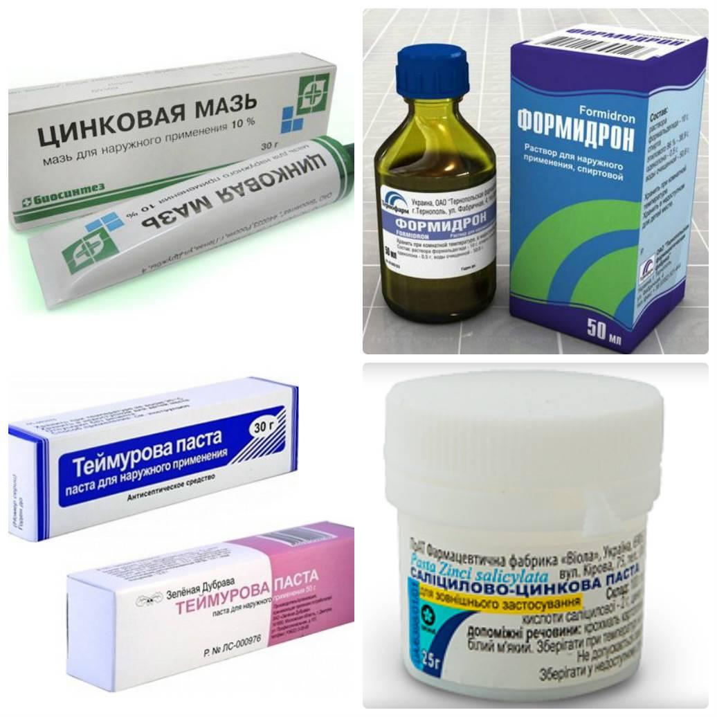 Себорейный дерматит и цинковая мазь