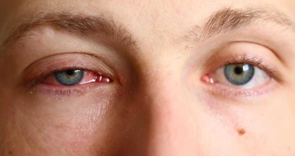 Просыпаюсь ночью глаза красные и болят