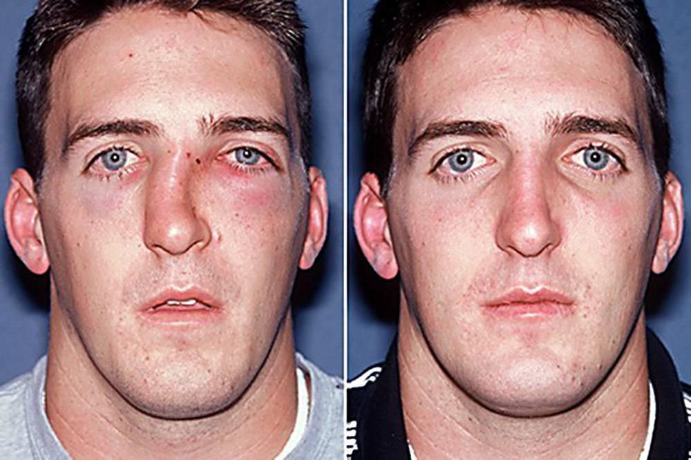 как определить сломан ли нос