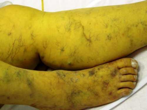 цирроз 4 стадии