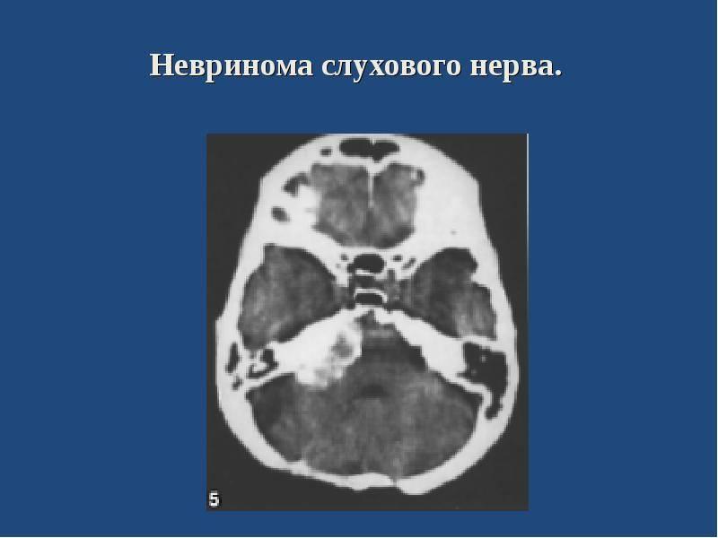 Невринома, шваннома: симптомы, лечение, слухового нерва и другие