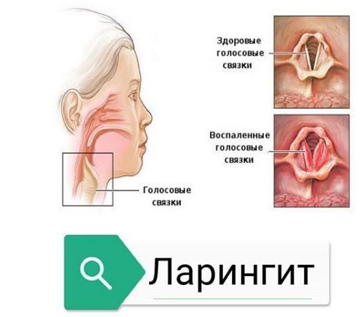 как называется воспаление голосовых связок