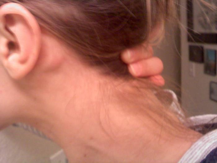 У ребенка воспалился лимфоузел за ухом: что делать
