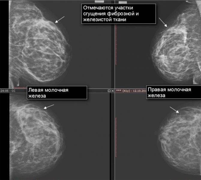 Мастопатия молочной железы лечение народными средствами