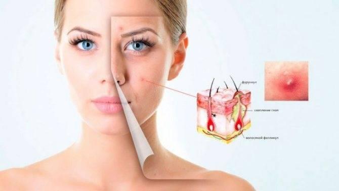 Лечение болячек в носу