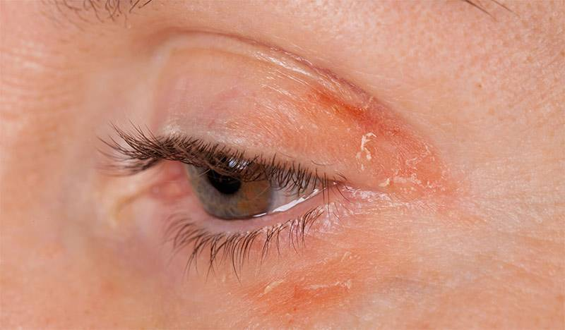 Грибковые заболевания глаз: причины и лечение