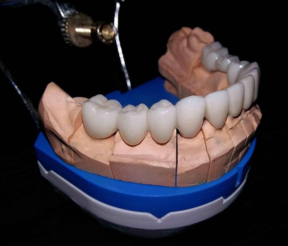 Технология изготовления зубных протезов