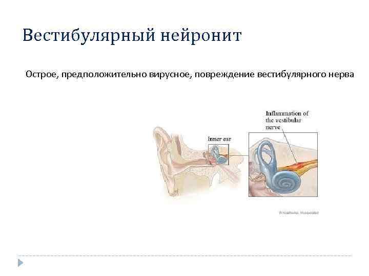 вестибулярный неврит симптомы
