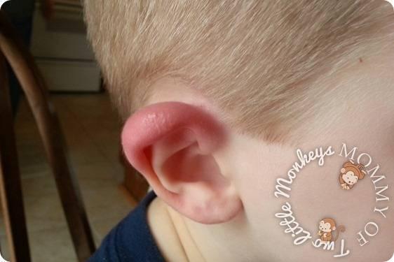 Простуда в ухе: что делать в домашних условиях, если продуло и болит