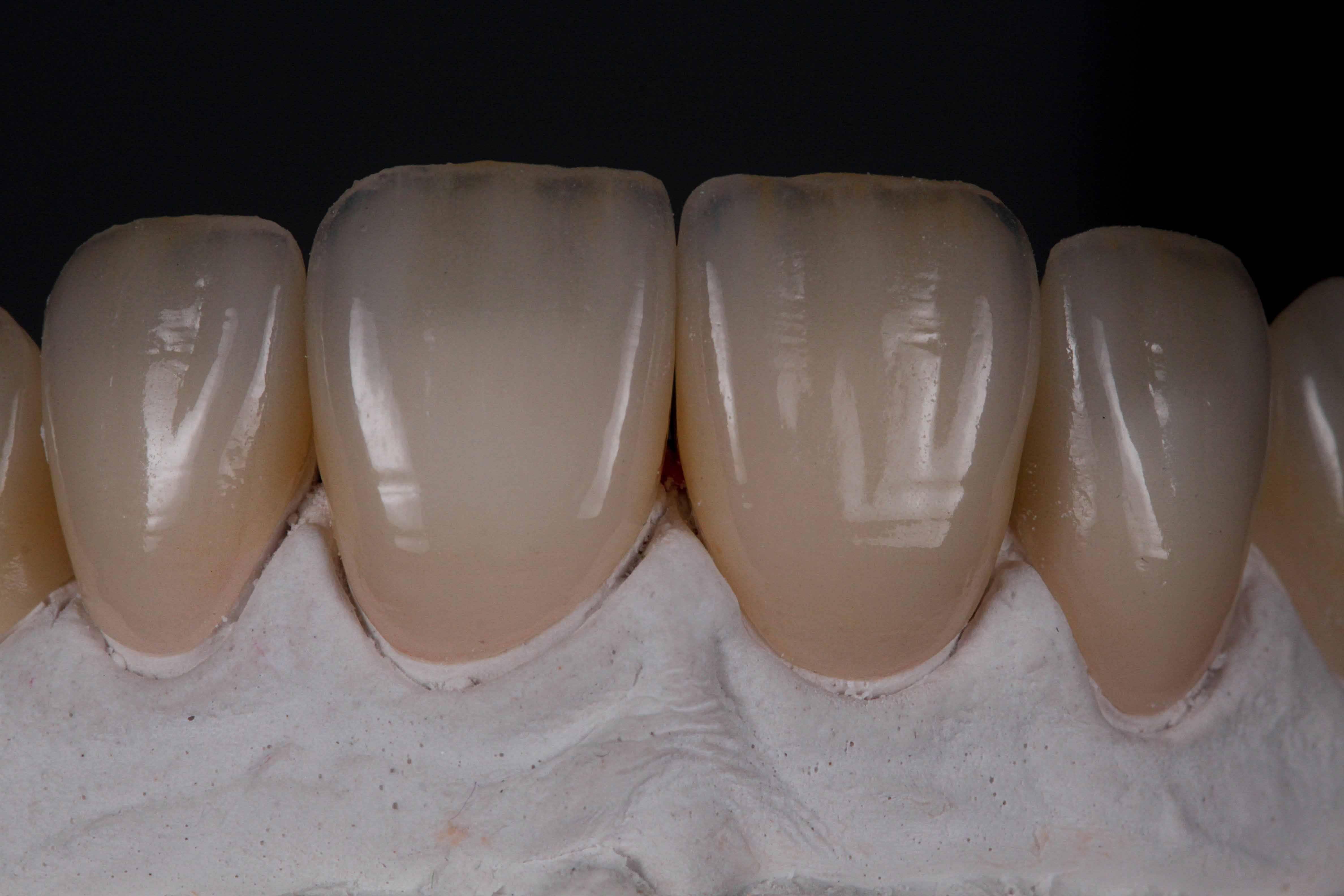 Керамические коронки на зубы цена в москве [стоимость безметалловых коронок]