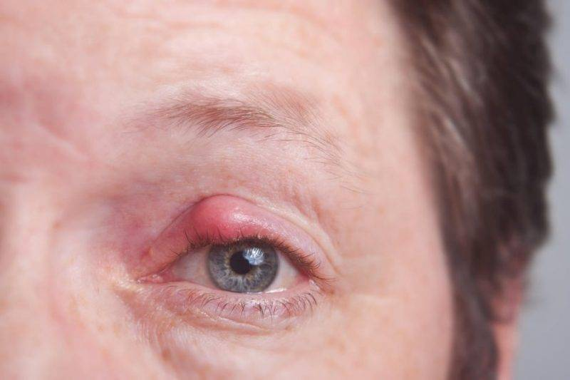 Болезнь века: можно ли греть ячмень на глазу?