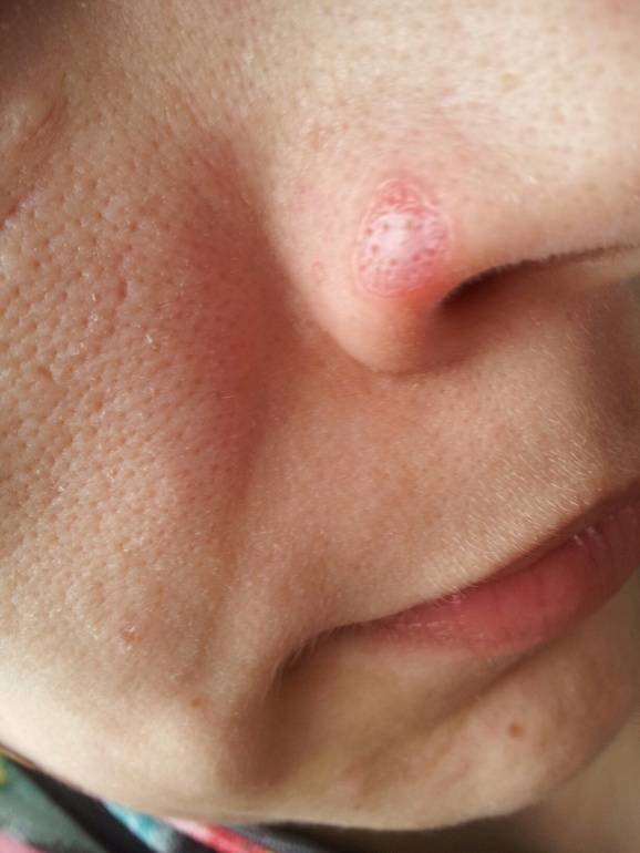 болячка в носу не заживает