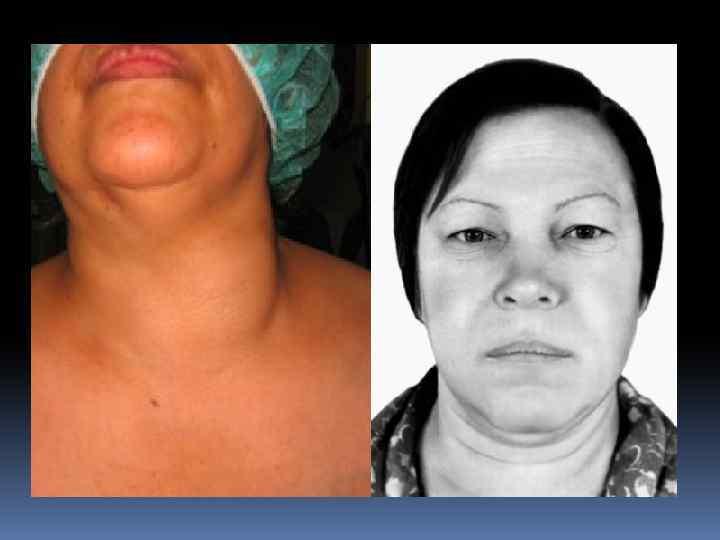 причины заболевания щитовидной железы