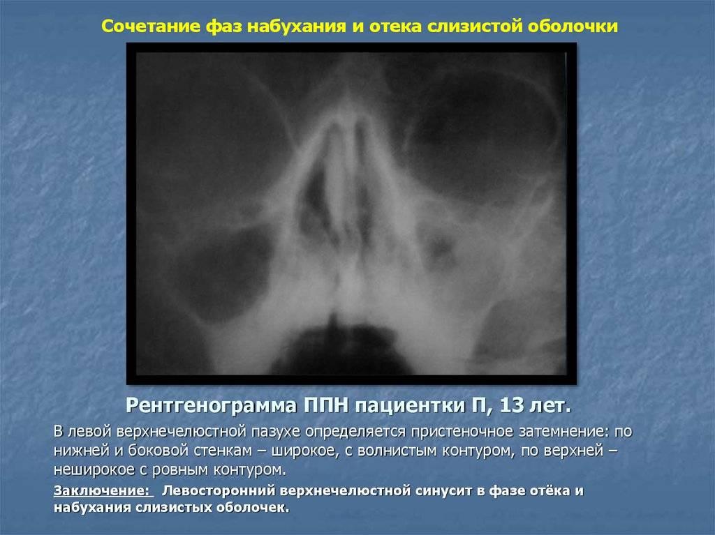 Снижение пневматизации левой гайморовой пазухи | загранник