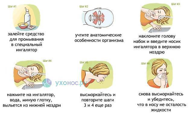 Правила и особенности промывания носа при насморке