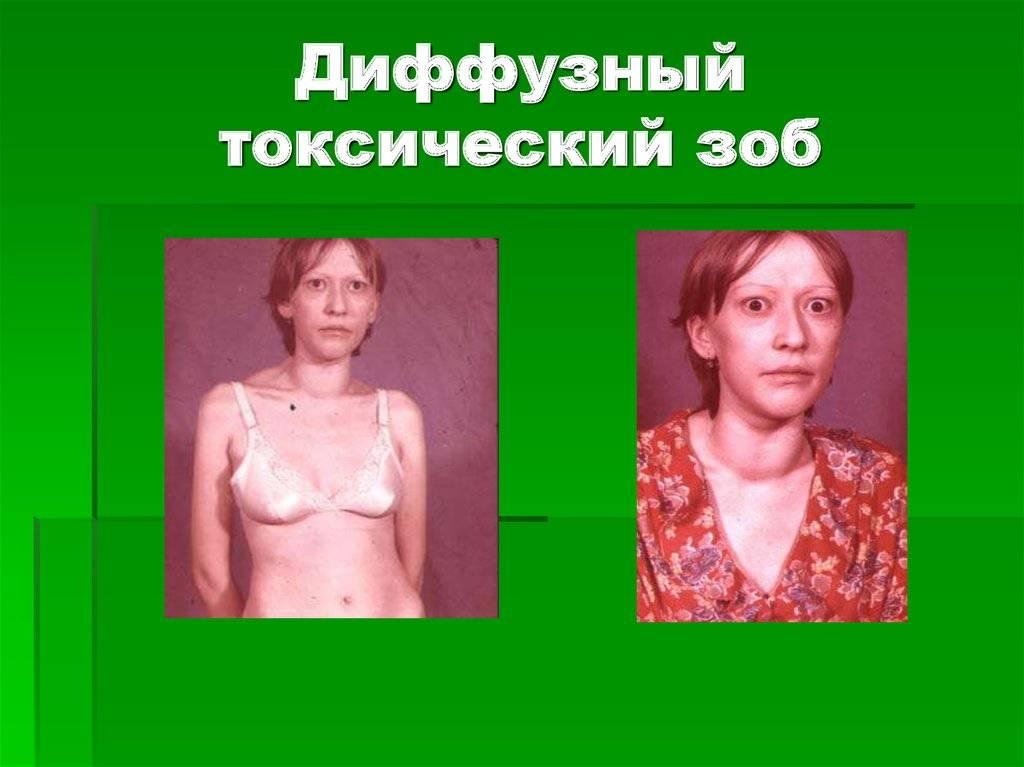 Диффузный зоб – патология щитовидной железы