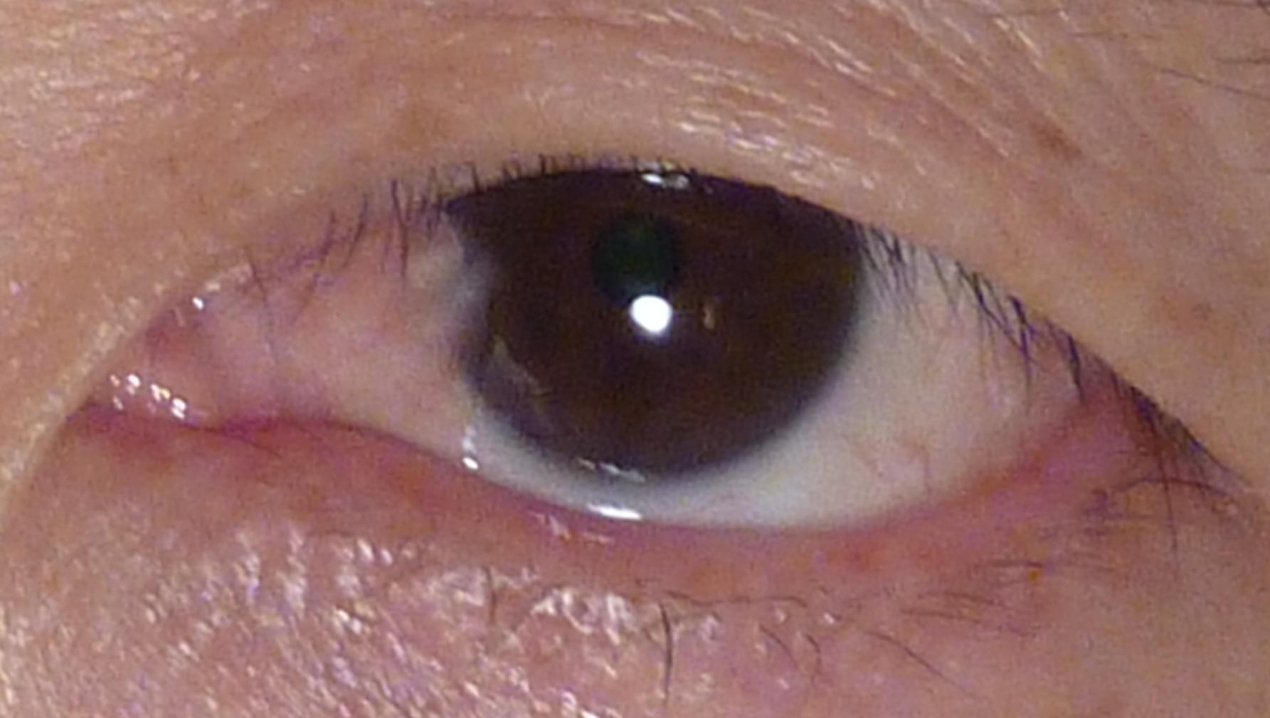 Пингвекула глаза у ребенка