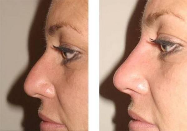 Как можно уменьшить нос: ринопластика, макияж, специальные упражнения