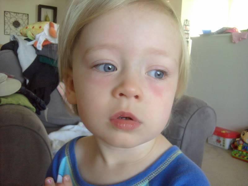 Красные круги под глазами у ребенка