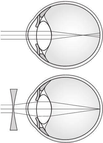 Ночные линзы для восстановления зрения: применение и правила подбора