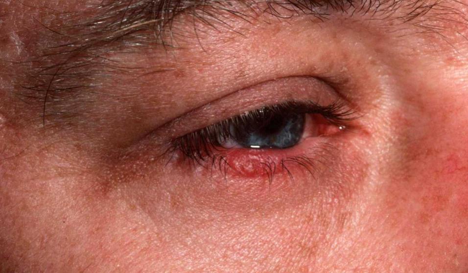 чешуйчатый блефарит симптомы и лечение