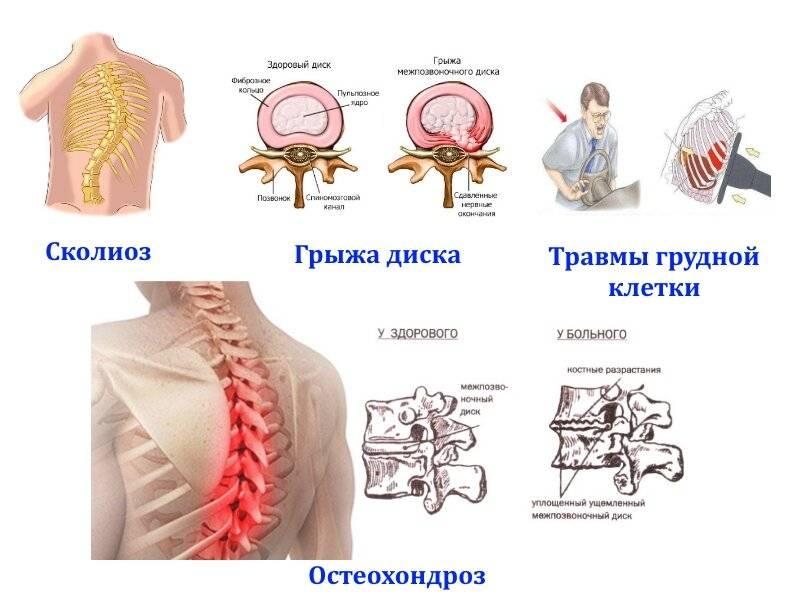 признаки грудной невралгии
