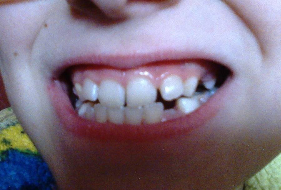 У ребенка криво растут молочные и постоянные зубы: что делать и как исправить дефект?