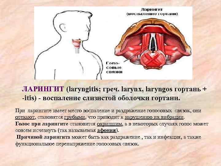 Лечение острого ларингита