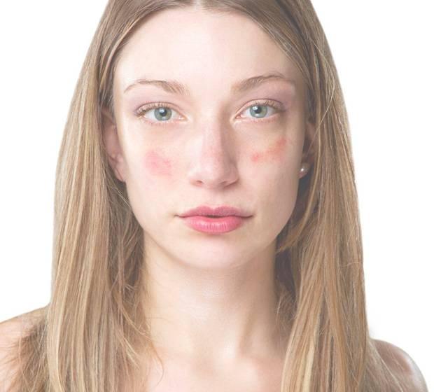 псориаз на лице лечение мазь