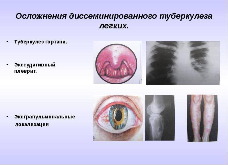 Туберкулез уха, гортани, носа, глотки, миндалин