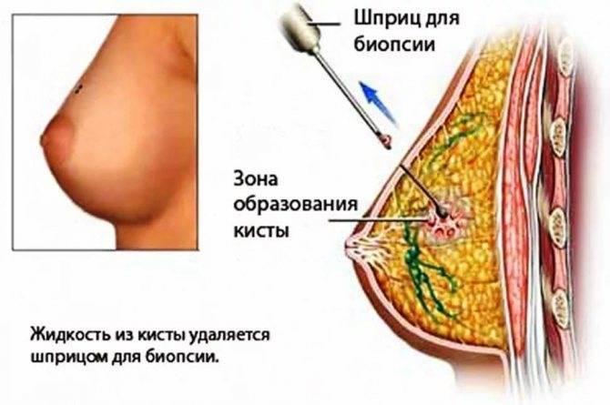 Киста молочной железы: причины, симптомы, диагностика и лечение. как лечить кисту молочной железы?