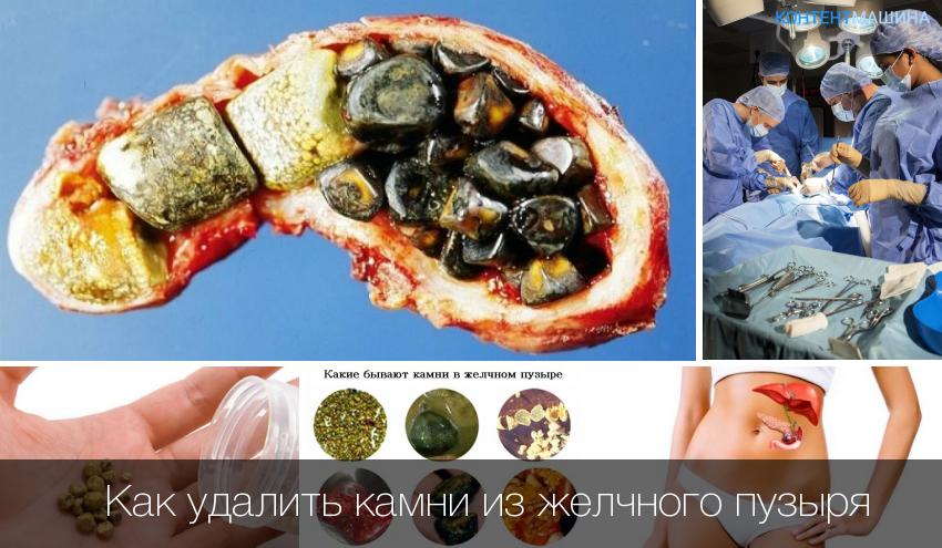 Камни в желчном пузыре. какая диета может спасти от операции