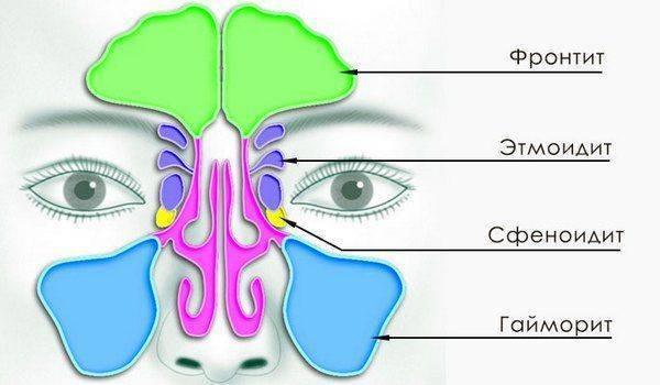 Как лечить сфеноидит: консервативное и хирургическое лечение