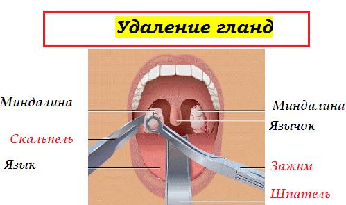 Гной на миндалинах (фото): как лечить гной на гландах без температуры у ребенка