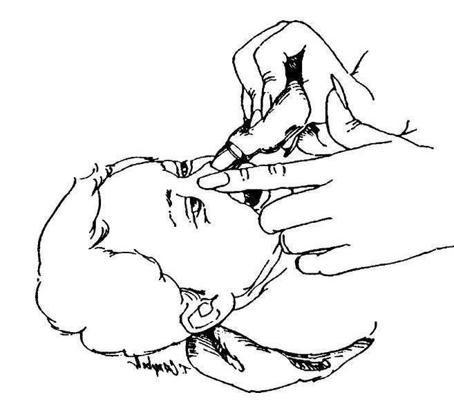Как правильно закапывать полидекса в нос – инструкция для детей