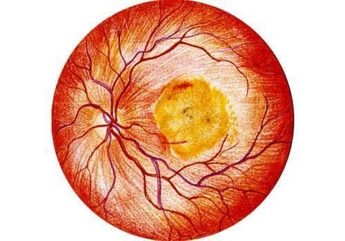 Глазные капли при атрофии сетчатки. атрофия сетчатки глаза: причины, симптомы и методы лечения