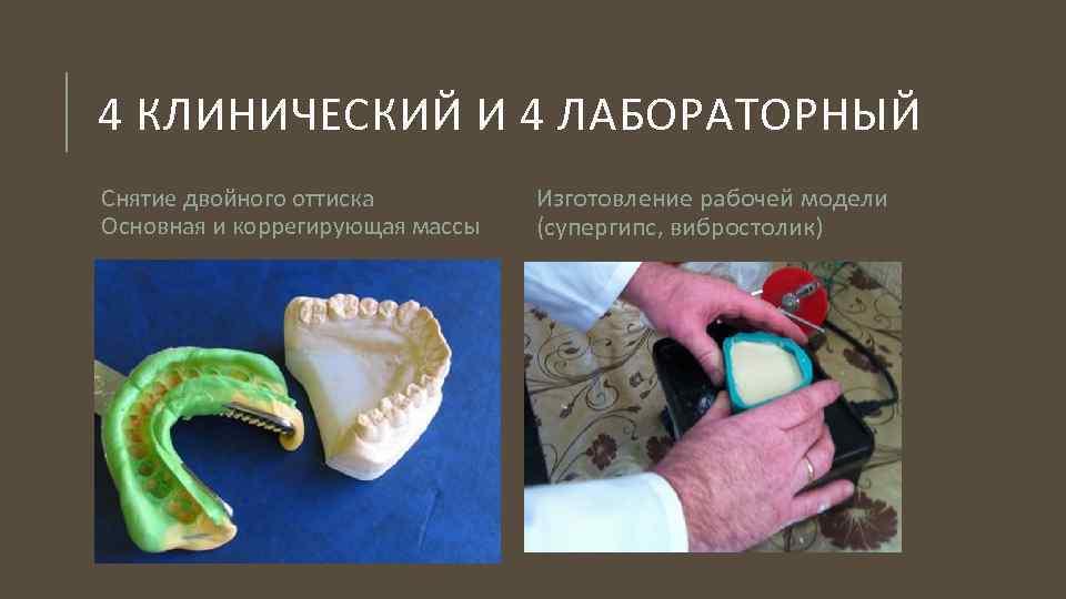 Протезирование зубов бюгельными протезами: конструктивные особенности, виды, стоимость