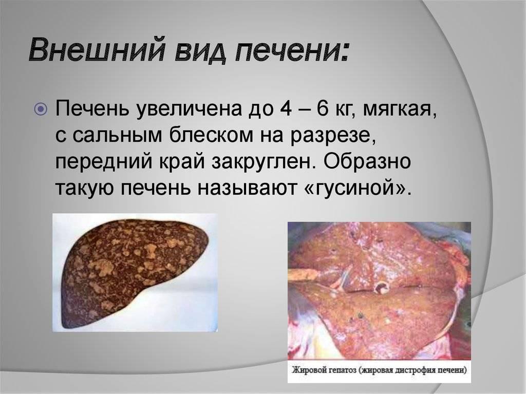 Стеатоз печени: симптомы, лечение, прогнозы