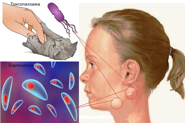 Воспаление лимфоузла за ушком у ребенка. схема лечения воспаленного лимфоузла у ребенка за ухом