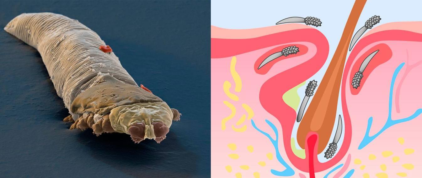 паразиты в коже человека