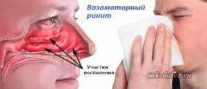 Вазомоторный ринит — что это такое, причины, симптомы и лечение у взрослых