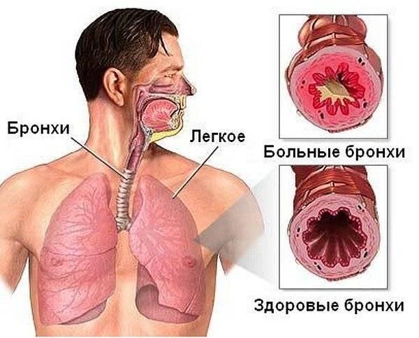 Воспалительные заболевания трахеи и бронхов