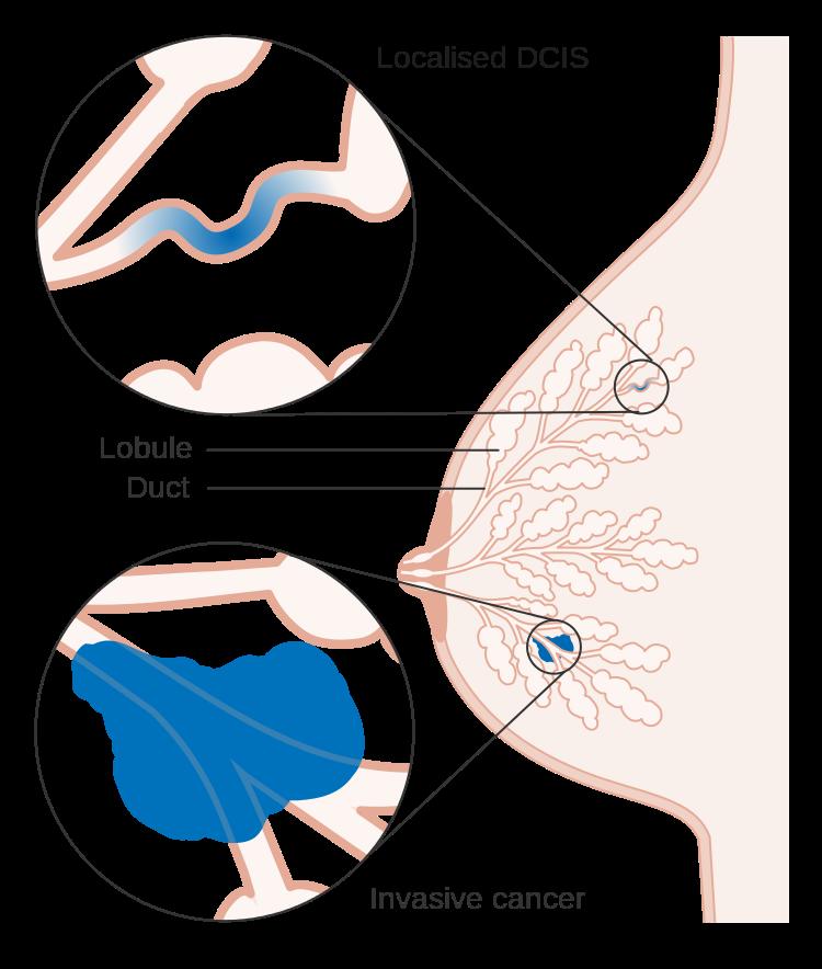 Инфильтрирующая карцинома неспецифического типа