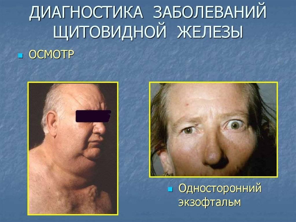 болезни щитовидной железы у мужчин