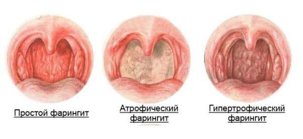 атрофический фарингит симптомы