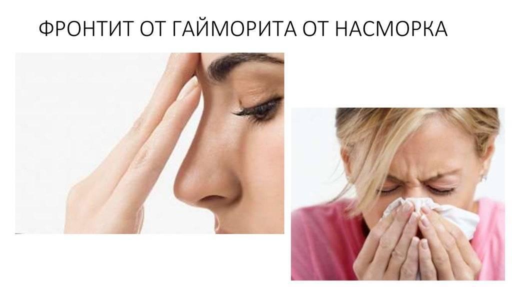 Гайморит без температуры