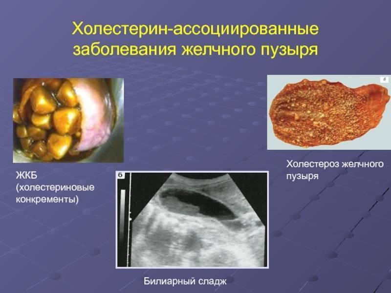 Холестероз стенки желчного пузыря: что это такое?